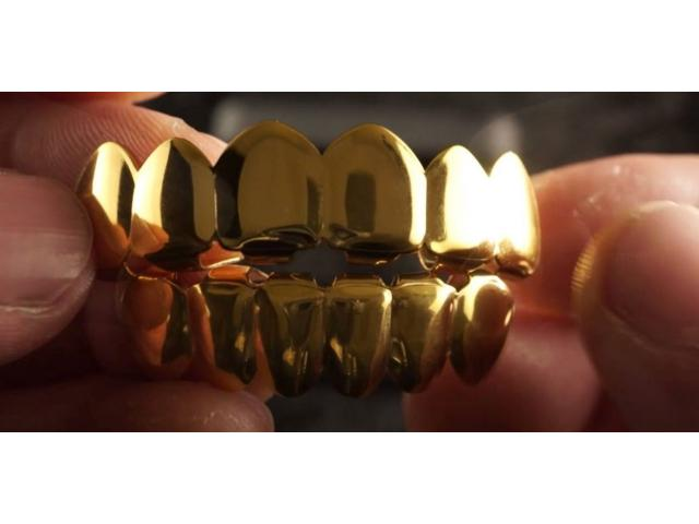 TEETH GRILLS from R150 - 4/4