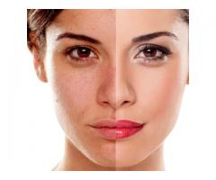 Acne Laser Treatment In South Africa