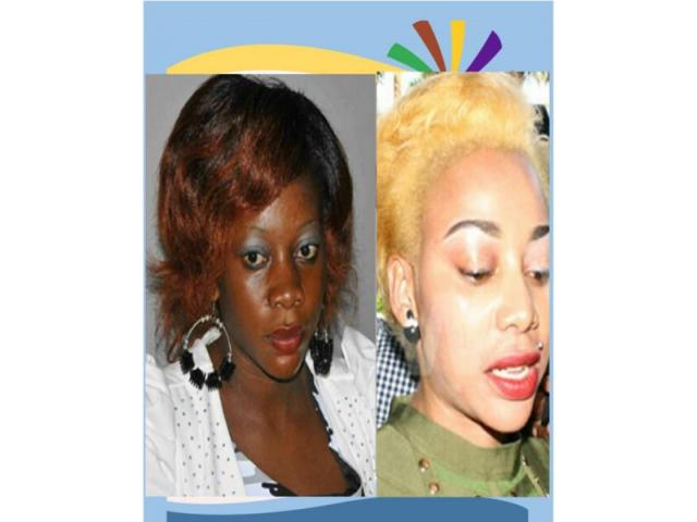 Rollyhampy skin lightening / bleaching products - 3/4